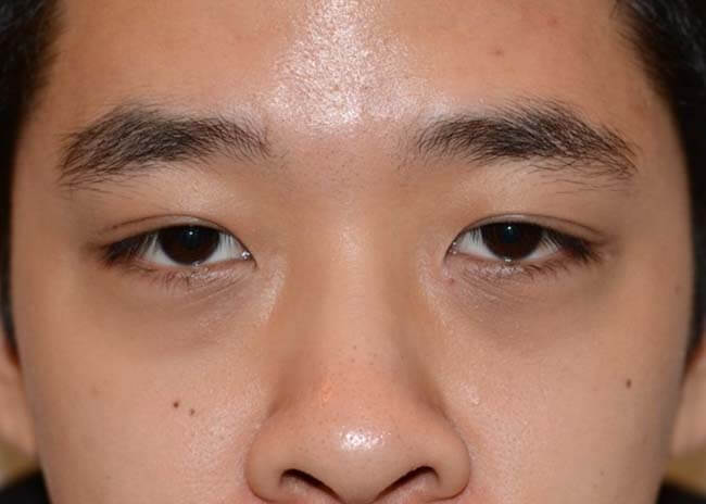 Asian Blepharoplasty 04 After