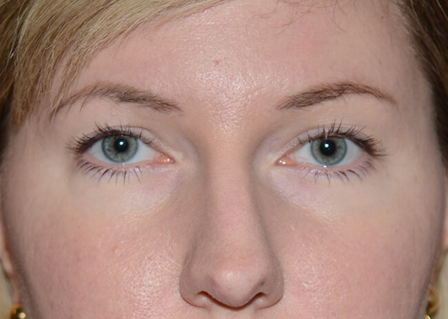 Brow Lift 01 After - Brows only
