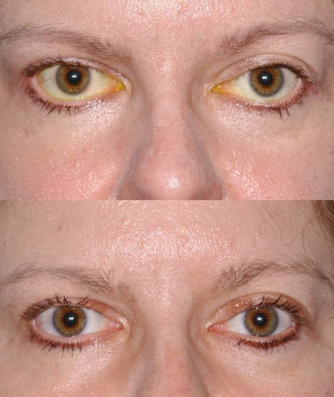 Eyelid Retraction Repair