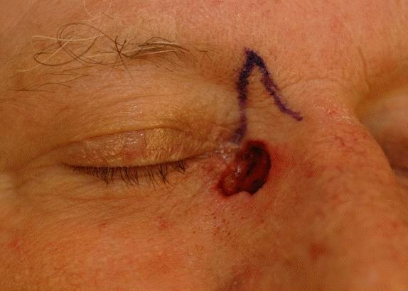 Skin Cancer Reconstruction 01 Before