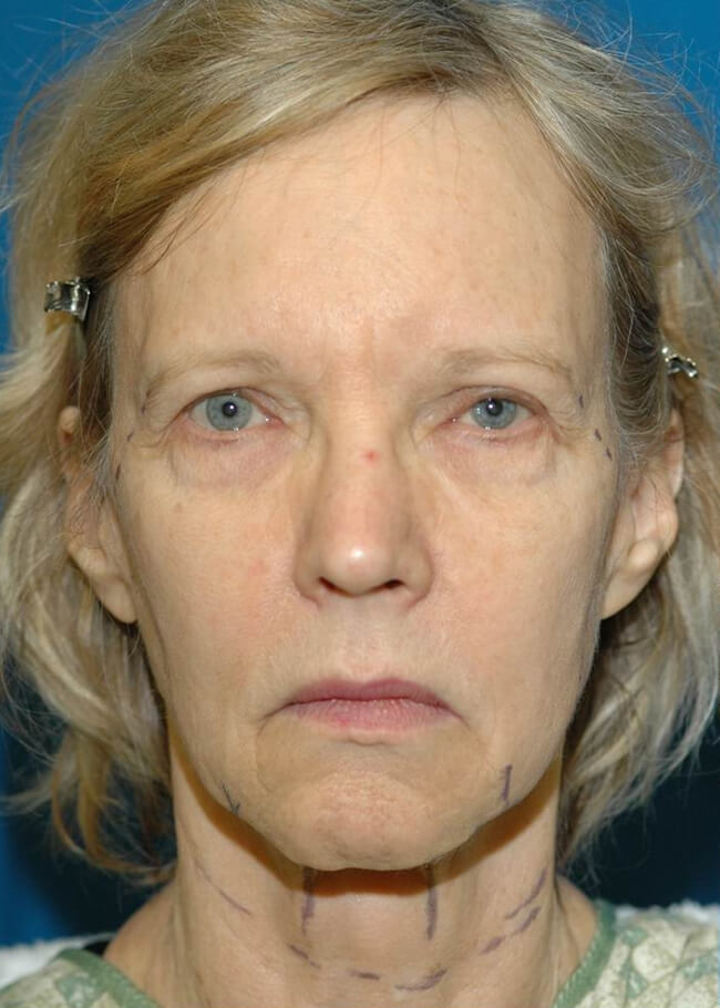 Face and Neck Lift 01 Before - Front