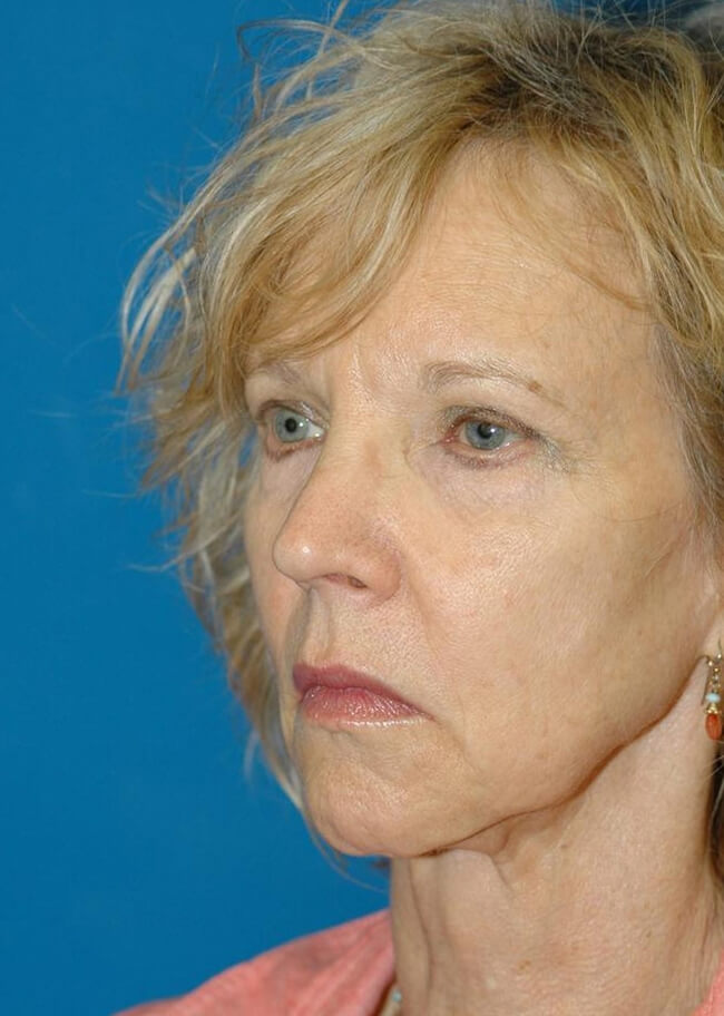 Face and Neck Lift 01 Before - 3/4