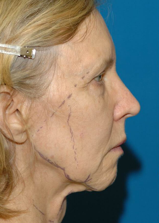 Face and Neck Lift 01 Before - Profile
