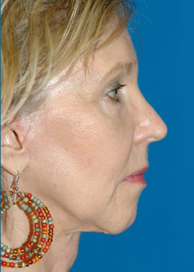 Face and Neck Lift 01 After - Profile